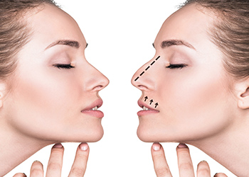 rhinoplasty-before-and-after-brisbane