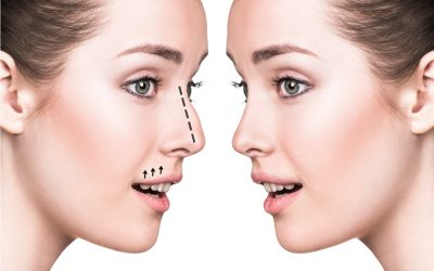 How To Achieve The Perfect Nose (Rhinoplasty Surgery)