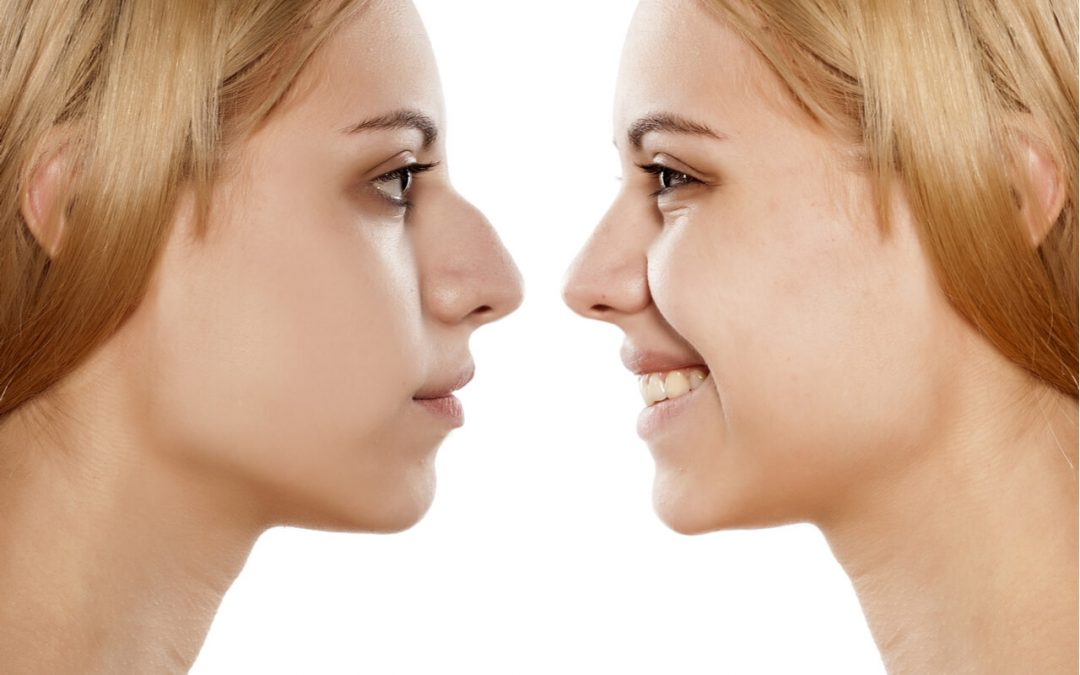 Do I Need A Nose Job? Things To Know Before A Rhinoplasty