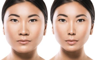 Asian Rhinoplasty: What's In Store In This Variation Of Surgery?